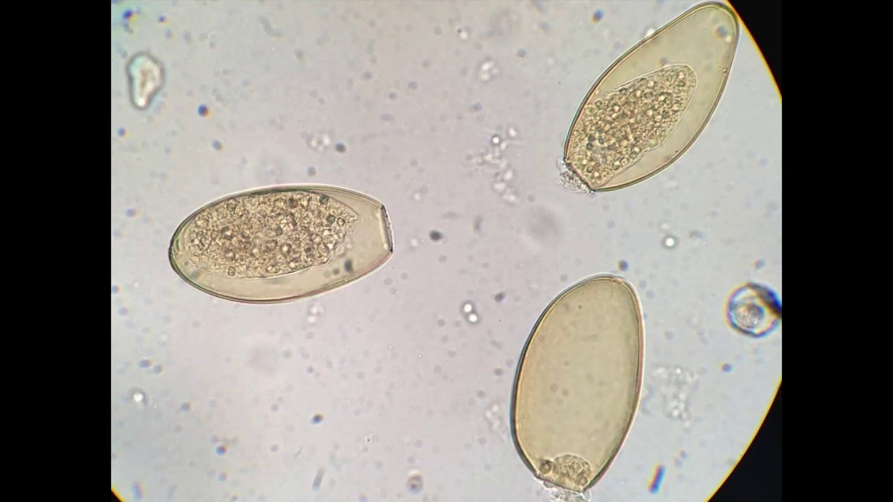 a fascioliasis morfológiája