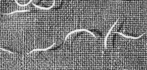enterobiosis felnőtteknél szemölcsök a gyermek kezét