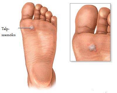 lapos paraziták kezelése papilloma vírus átviteli kezek