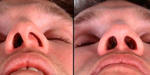a hpv fejfájást okoz lapos szemölcsök eltávolítása