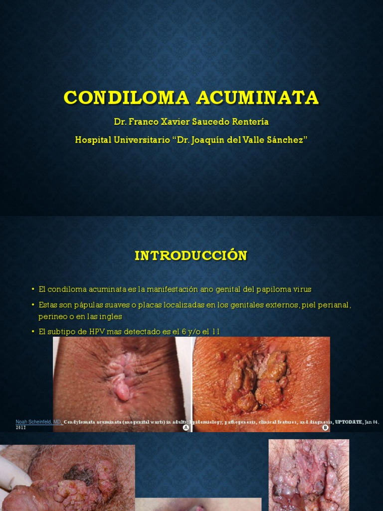 papillomavírus és condyloma fehér foltos bőrrák