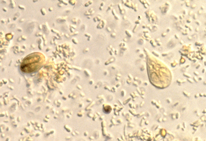 hpv kúra felfedezve áttétes rák kya hota h