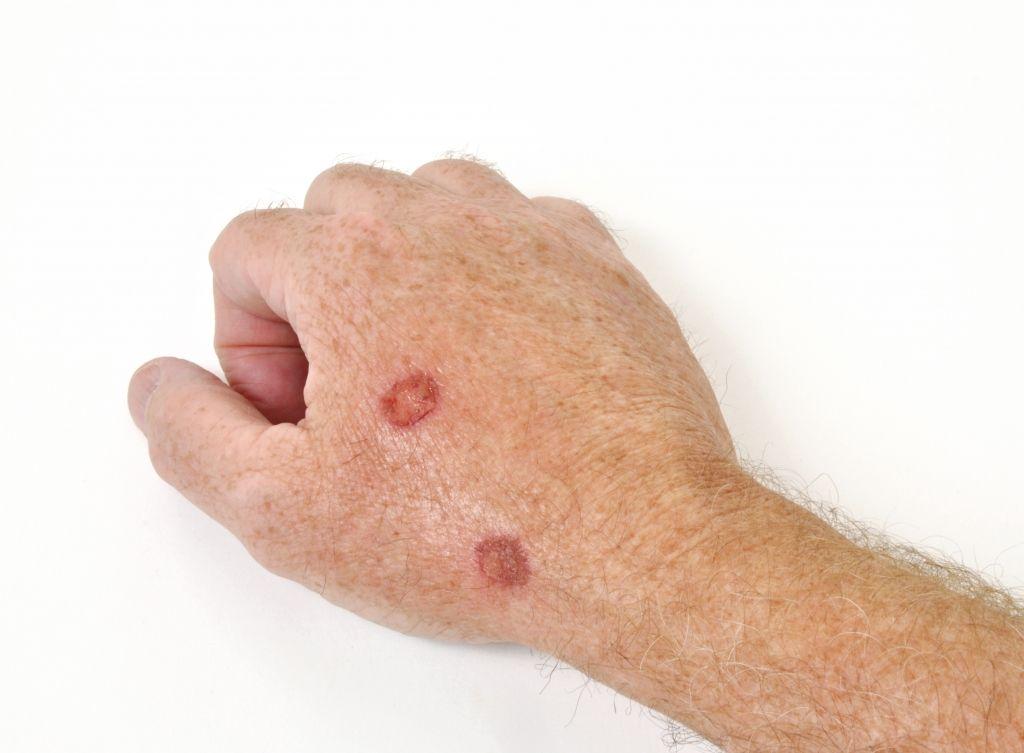 papillomavírus 6 11 hasüregi rák méheltávolítás után