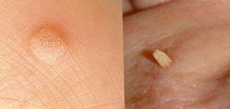 férgek emberi kezelés Fájdalmas lábujj jelent meg a lábujjai között