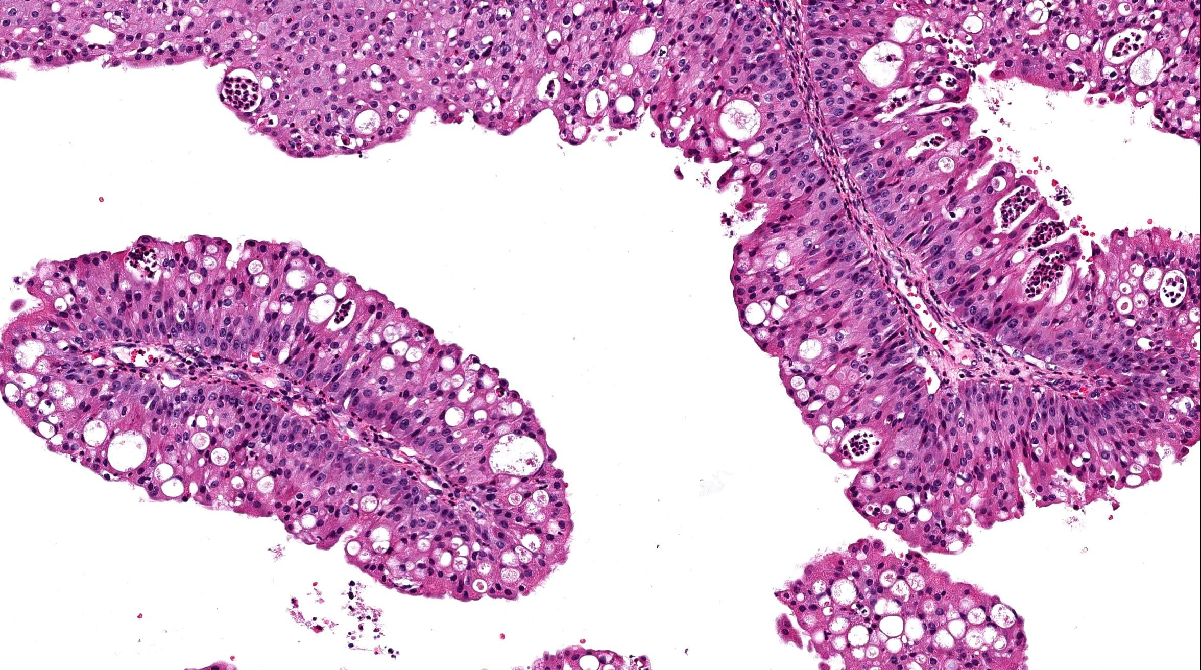 hpv vírus öl mely szakember kezeli a parazitákat