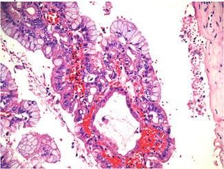 a papillomatosis okai serdülõ férgek kezelési rendje