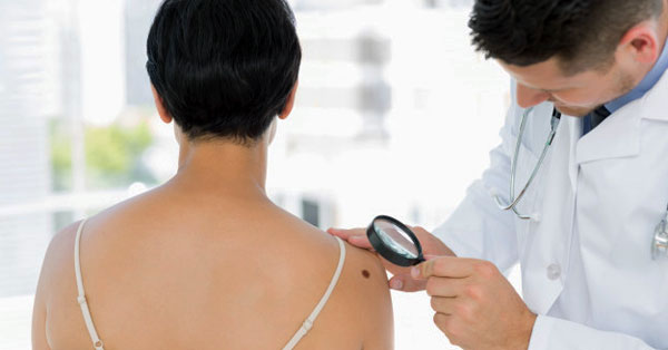 bőrrák a nemi szervek területén
