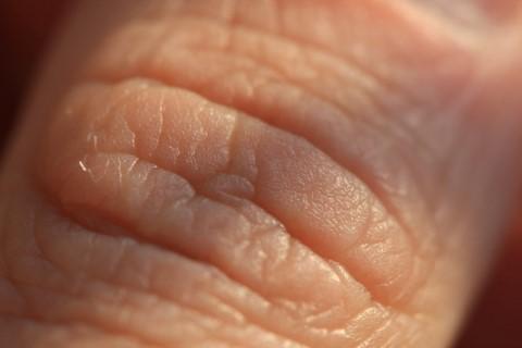 mennyit gyógyul a nemi szemölcsök eltávolítása után