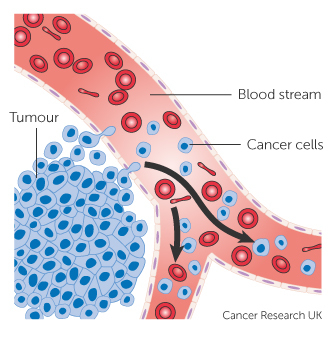 epithelioid szarkóma rák