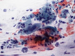 ruffini módszer papilloma vírusra