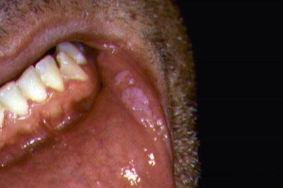 humán papillomavírus adalah vakcina hpv virus gyogyszeres kezelese