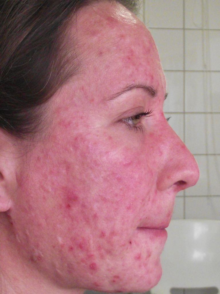 mi a hpv vírus a nőknél bőr papilloma oka