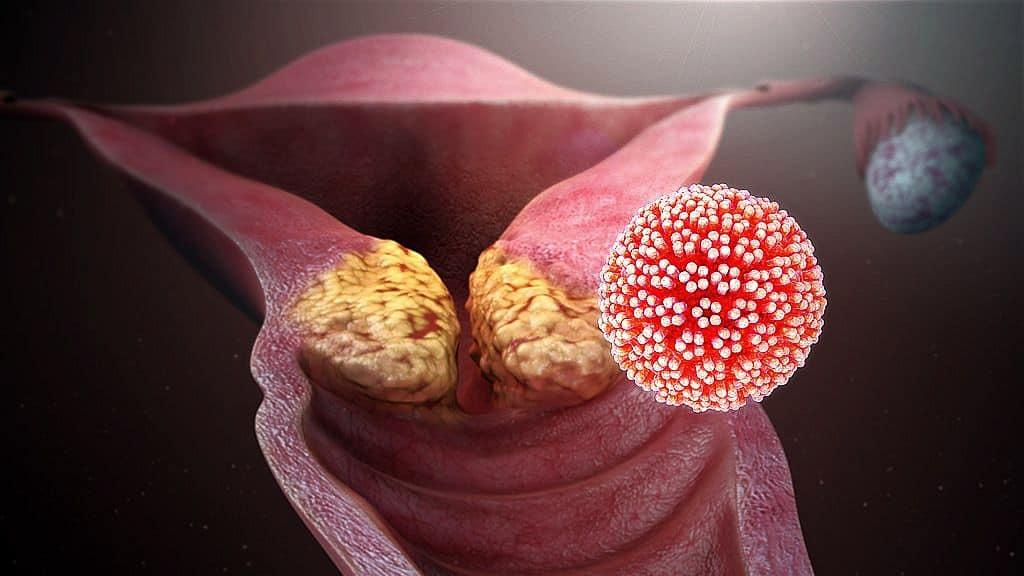 emberi papillomavírus fertőzés gyalog polyoxydonium condyloma