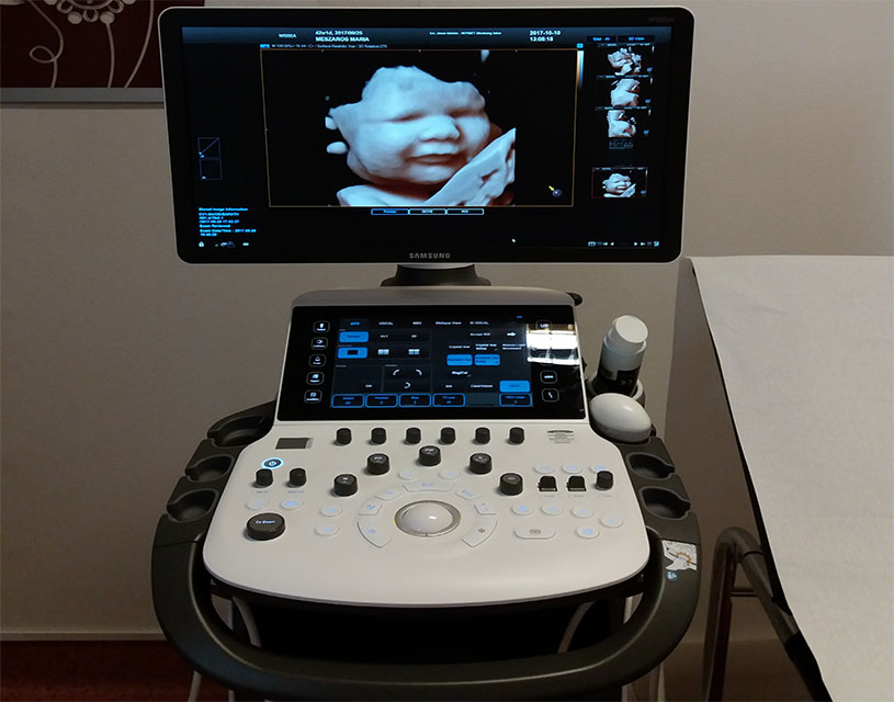ezek a fejhallgatók ultrahangon láthatók nyaki szemölcsök