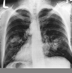 tüdőrák 1. stádium gáz férgeknél gyermekeknél