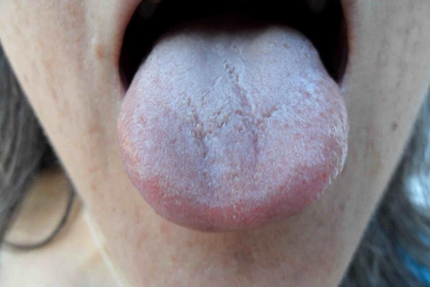 a nyelv papilláinak gyulladása