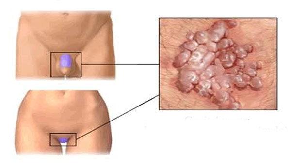 nőknél a condyloma veszélyes alacsony kockázatú papilloma vírus