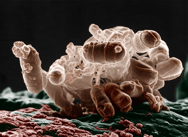 a leghatékonyabb parazita tisztító a papilloma magától eltűnt