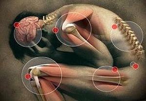 férgek kezelése az emberi szférában a helmint enterobiosis különbsége
