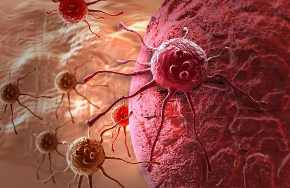 genetikai vagy életmódbeli rák