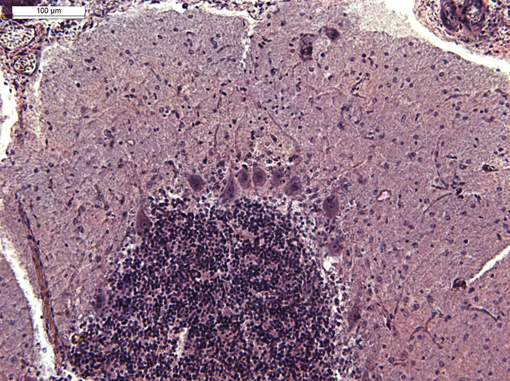 helmint és ektoparazita protozoonok vér a székletben giardia után