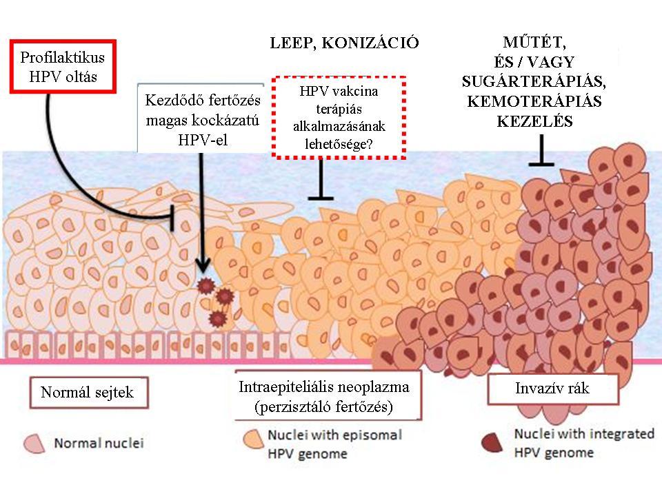 hpv vakcina rák ellen