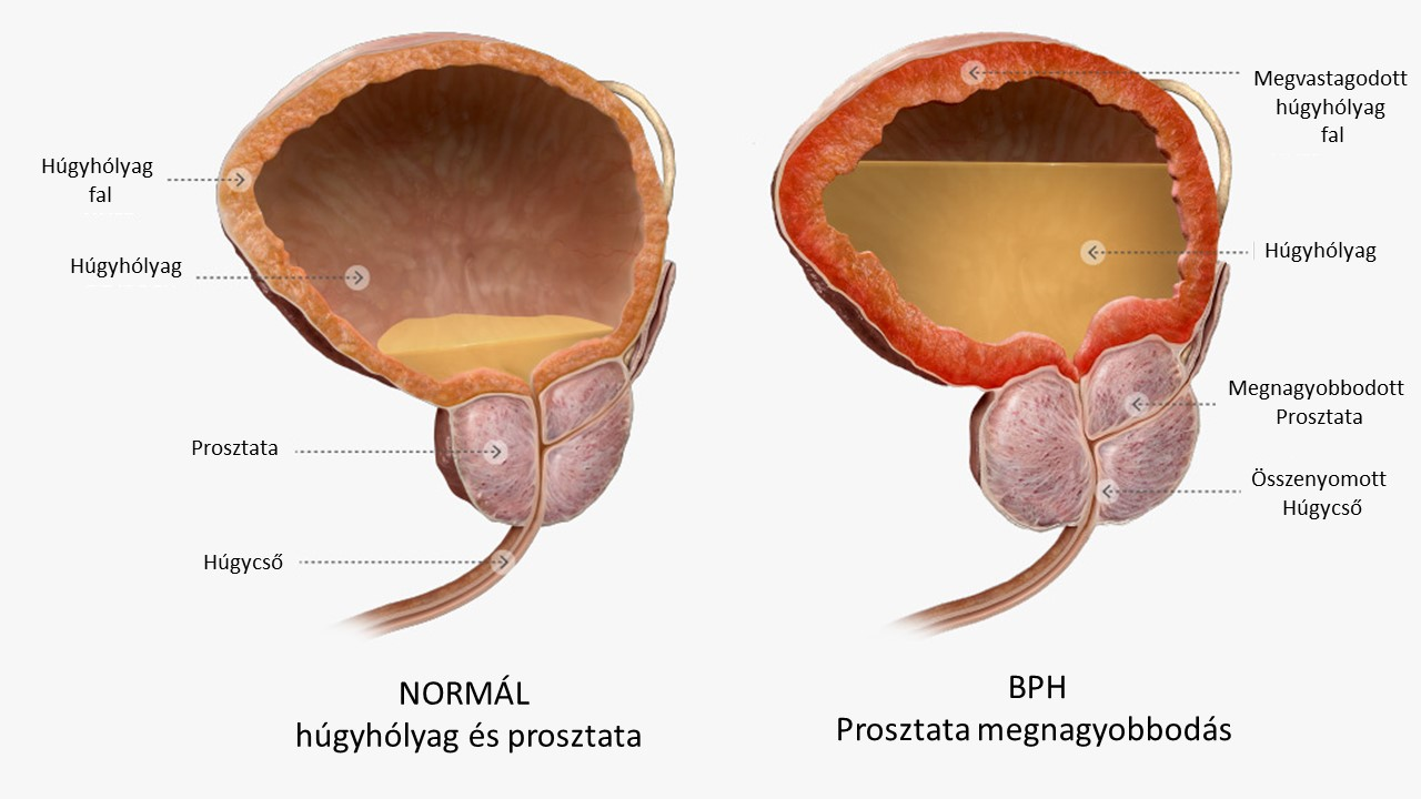klinikai helminthiasis parazita szemeken papillómák