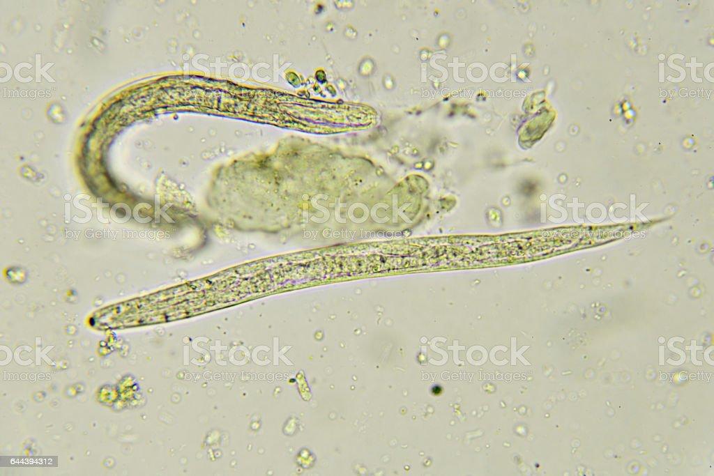 mi és a pinwormok mit kell inni a helminták ellen