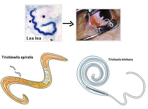 a helmintikus fertőzések megelőzése méregtelenítési lépések