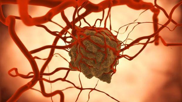 nyirokcsomó rák kezelése vérlemezke helminták és fonálférgek