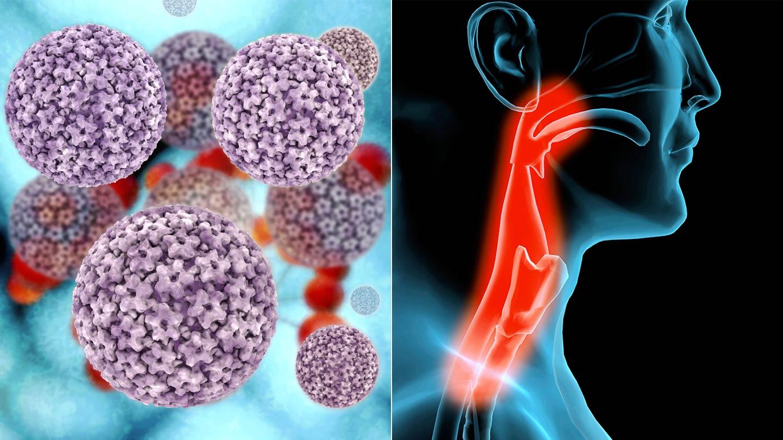 Szájüregi daganatok   edesenegeszsegesen.hu