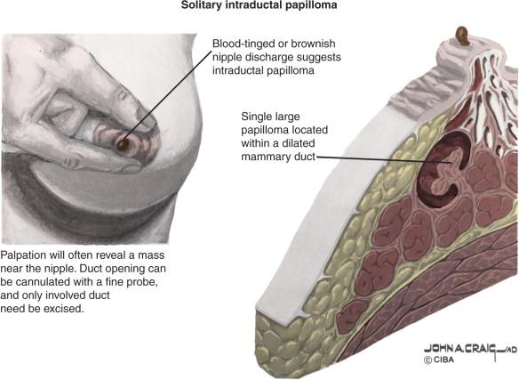papilloma kezelés medscape