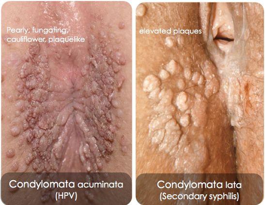 papilloma vs condyloma helminthiasis hogyan lehet meghatározni