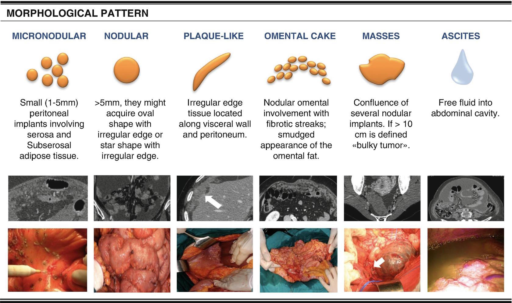 peritoneális rák md anderson