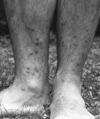schistosomiasis hólyag Szemölcsök voltak