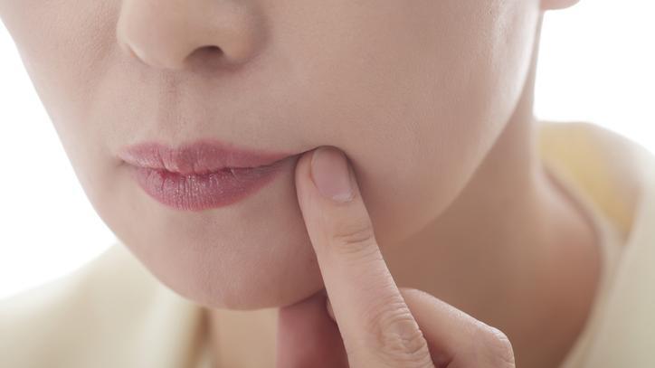 szemölcsök az ajkakon és a szájban puffadás hasi rák