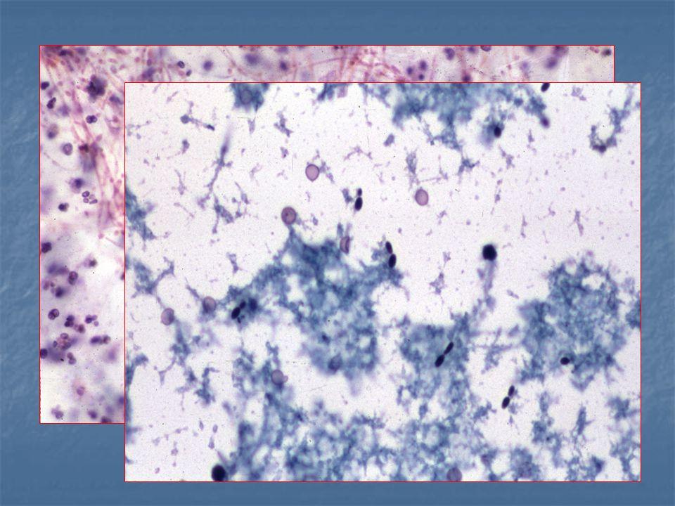 urothelialis papilloma szövettan pinworm gyógyszer