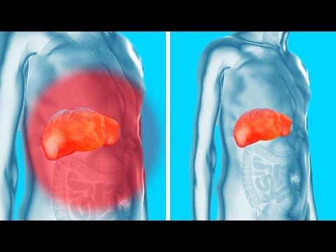 vinil-condyloma mi a negatív enterobiosis
