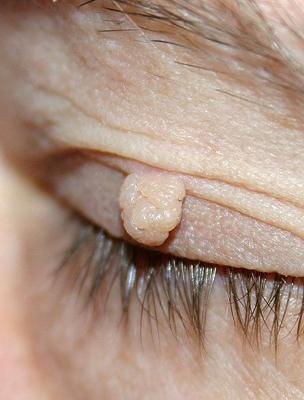 a szem alatti papilloma