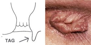 szemölcsök a végbélben hogyan kell kezelni rák okoz HPV-törzseket
