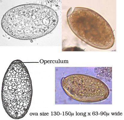 schistosomiasis képek papilloma vírus kezelése