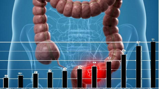 vastagbélrák nyirokcsomók túlélési aránya paraziták testtablettákban