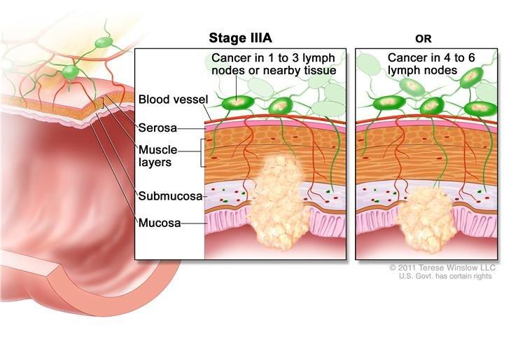 Rákos rák műtéte | Miri Tej