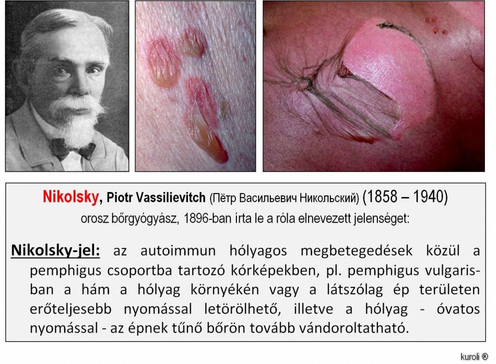 parazita fertőzés és a test kezelése fibroepithelialis papilloma bőr