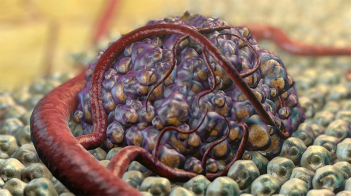 condyloma acuminatum diagnózis