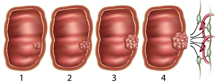 előrehaladott peritonealis rák várható élettartama