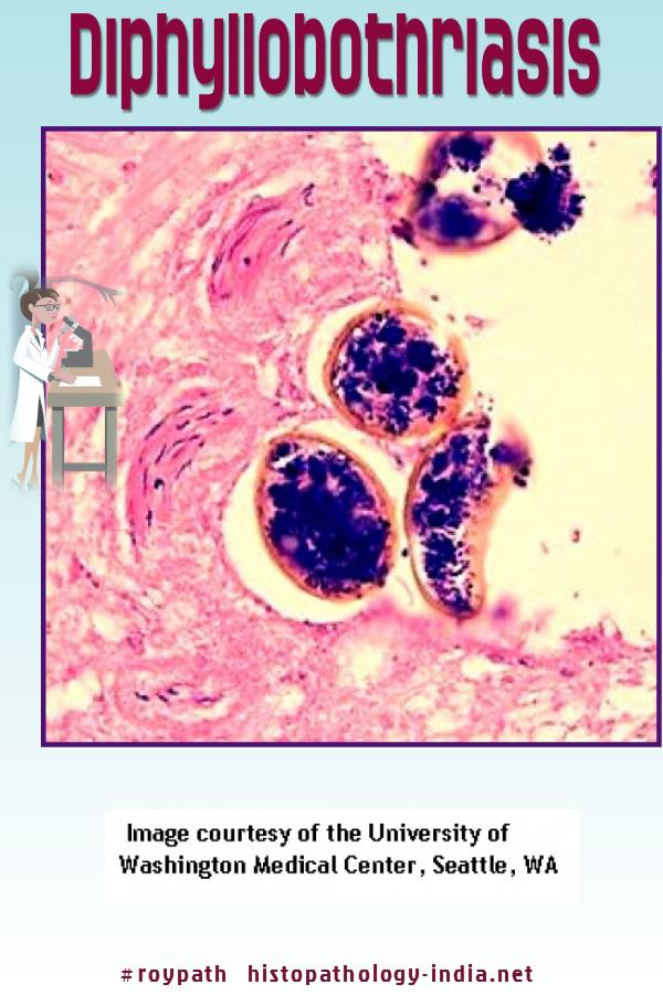 mind a diphtylobotriasis hány féreg megy