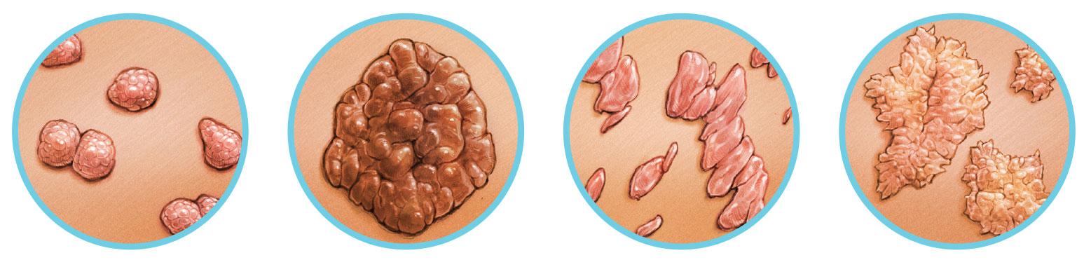 paraziták és kezelés papilloma jóindulatú hám neoplazma