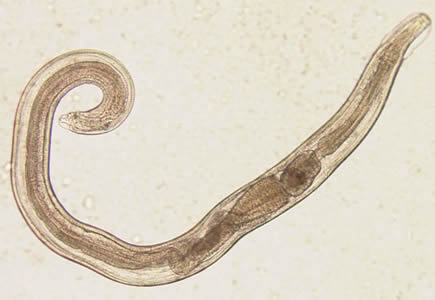 az enterobius vermicularis volt ist das kevésbé mérgező gyógyszer férgek ellen