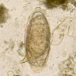 cdc schistosomiasis rendeljen diétás tablettákat férgekkel